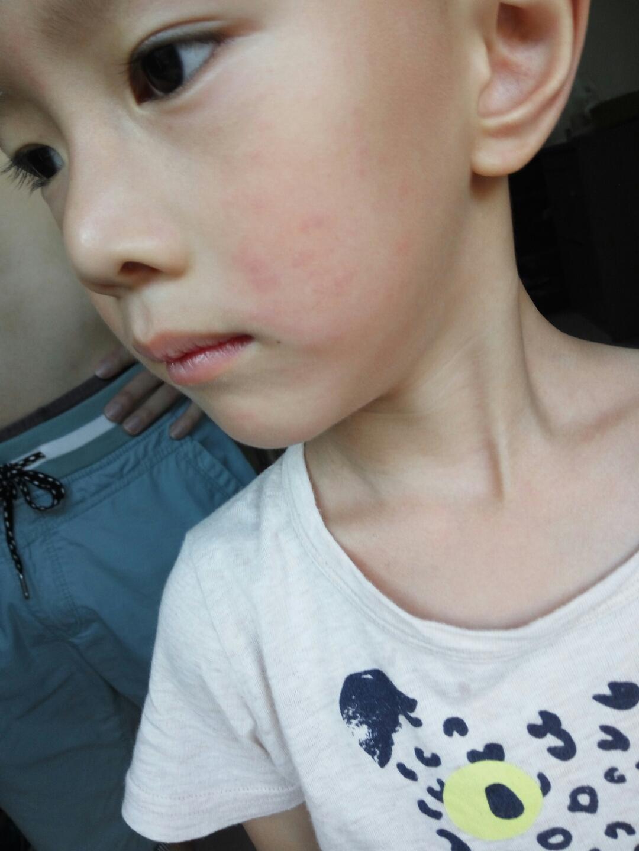 6岁高烧,病毒性感染,白细胞偏低,儿童第三天脸学院派性感高颜值图片