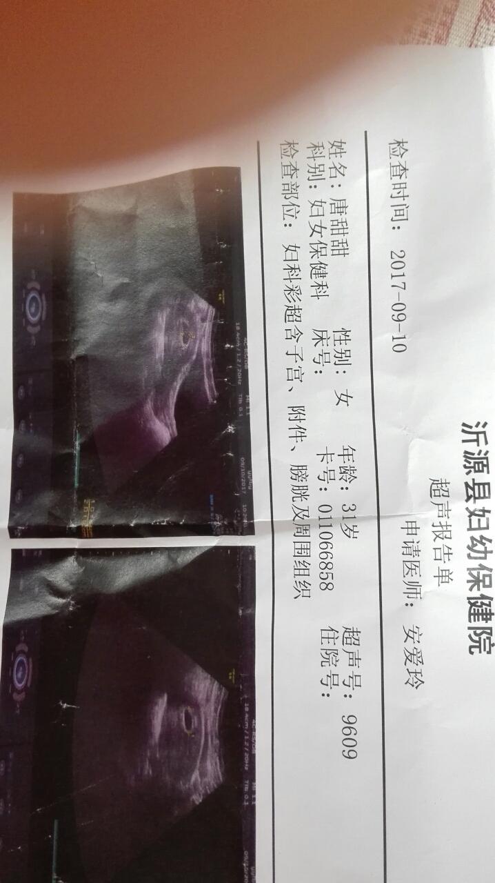 怀孕40天孕囊1.9×1.7×1.0女孩男孩-妈妈帮问昵称女生qq最新图片