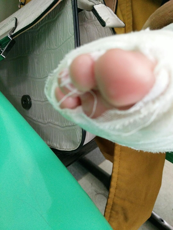 纱布如何包扎脚趾图解