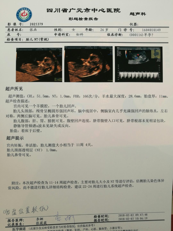 116天区nt吧_今天孕12周2天,做nt检查,胎盘着床后壁,医生又说胎盘位置有点低.