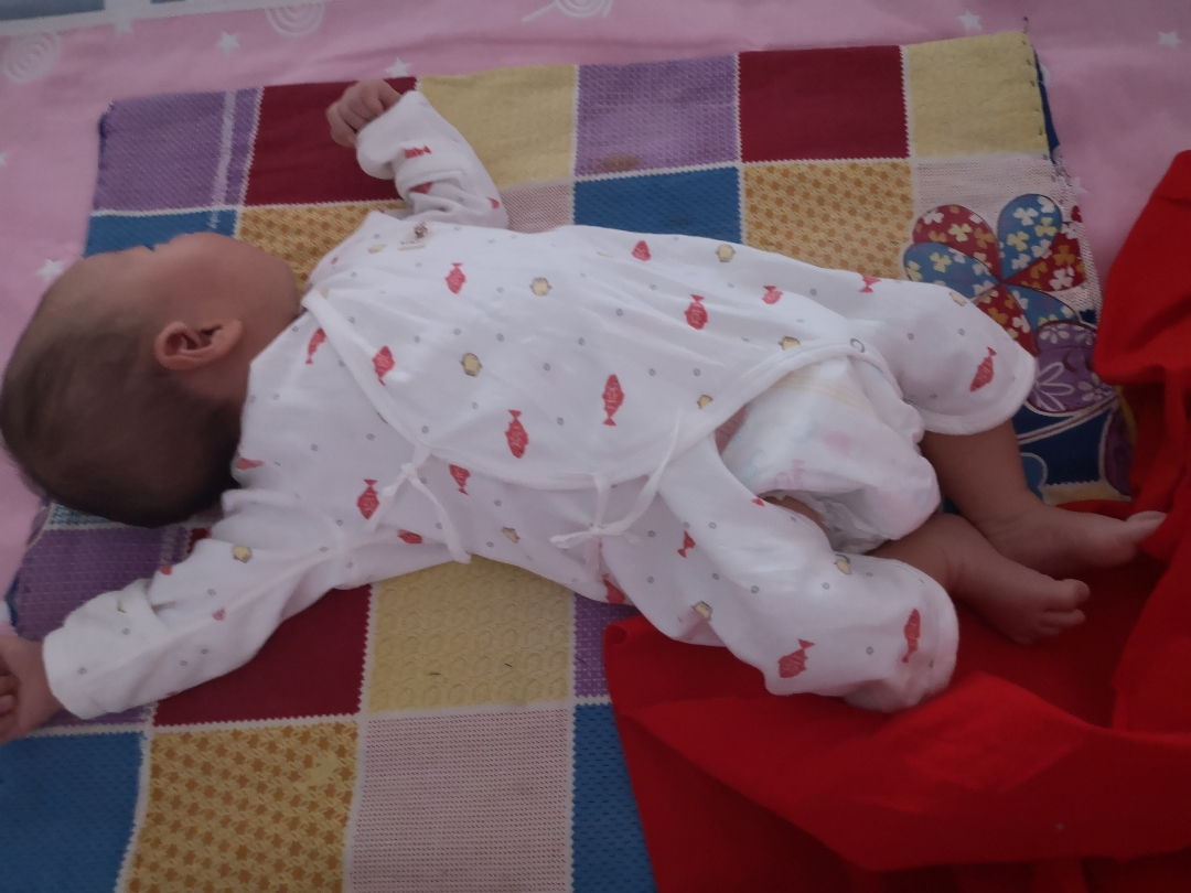 宝妈们,宝宝经常侧头睡觉,很难正着头睡,后脑勺冬天脸突然发痒发烫发红怎么回事图片