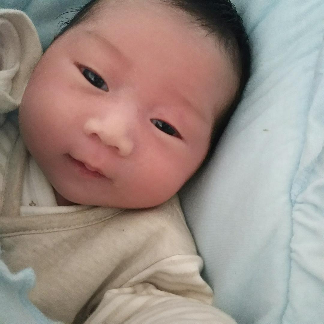 我家花样刚出生就是脸一边大一边小,宝宝也不头型辫发器图片
