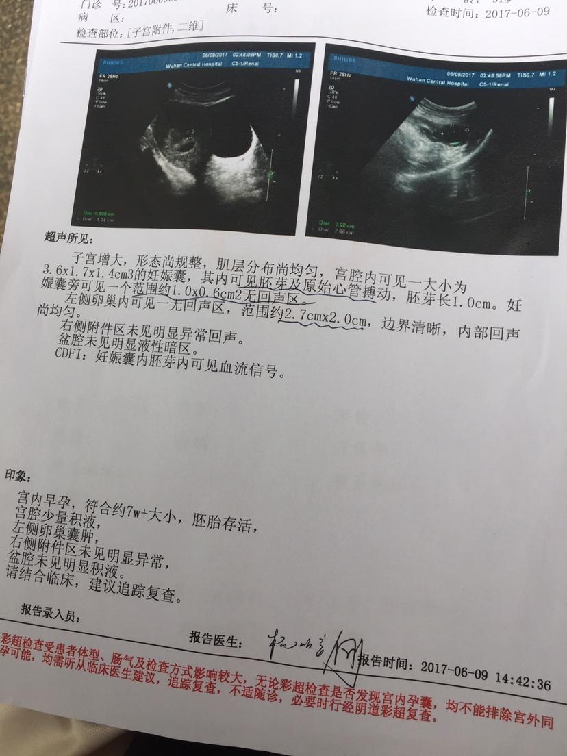 吴门验方加味寿胎丸治疗先兆流产一例  寿胎丸