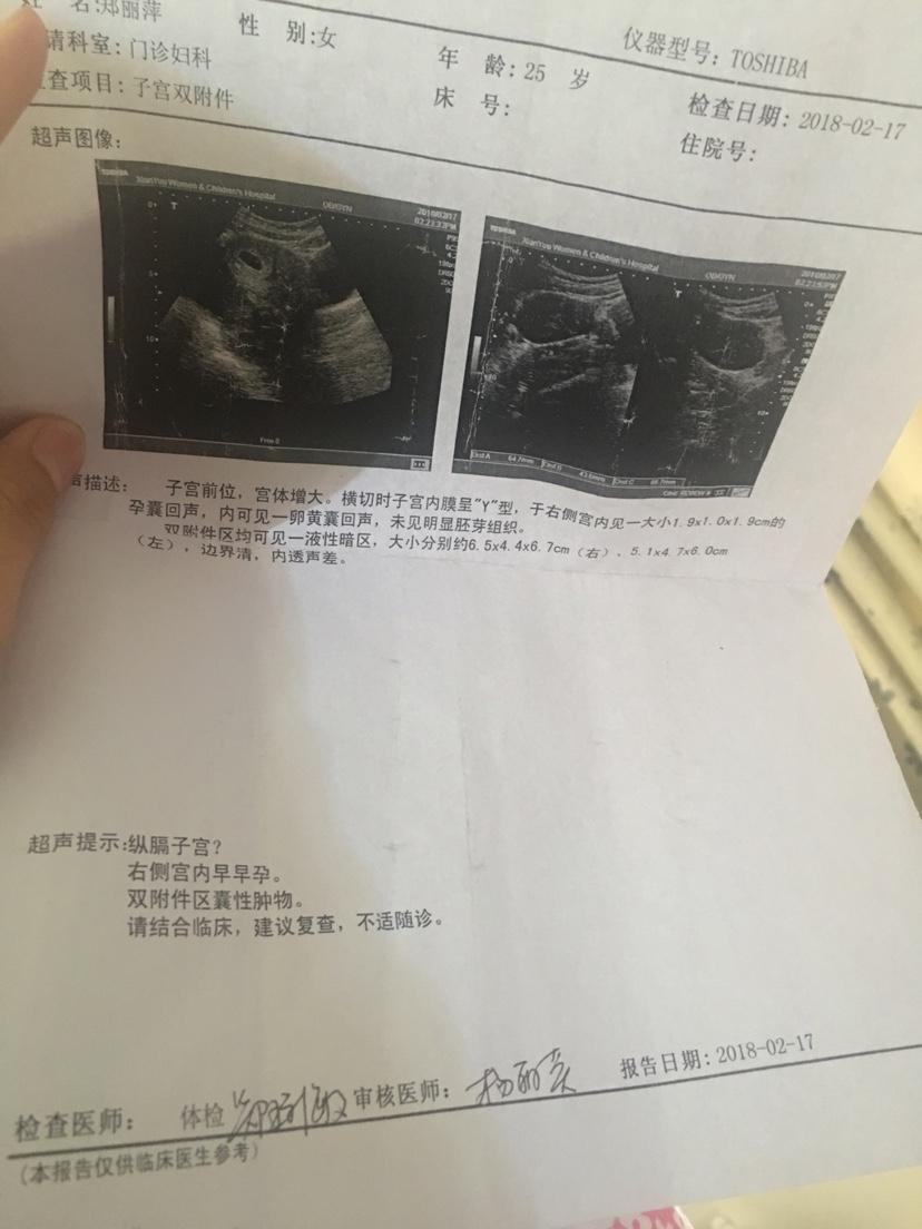 女人卵巢囊肿的图片