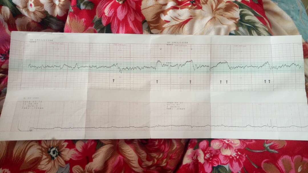 34周时做的胎心监护,二十分钟无胎动,胎心比较