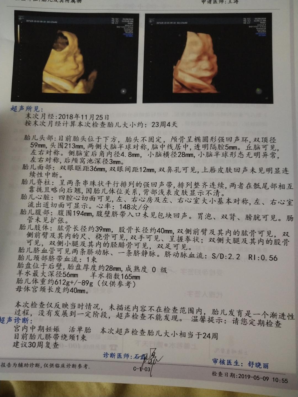 週 妊娠 胎動 13